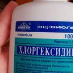 Это копеечное средство заменит пол-аптечки и в быту поможет