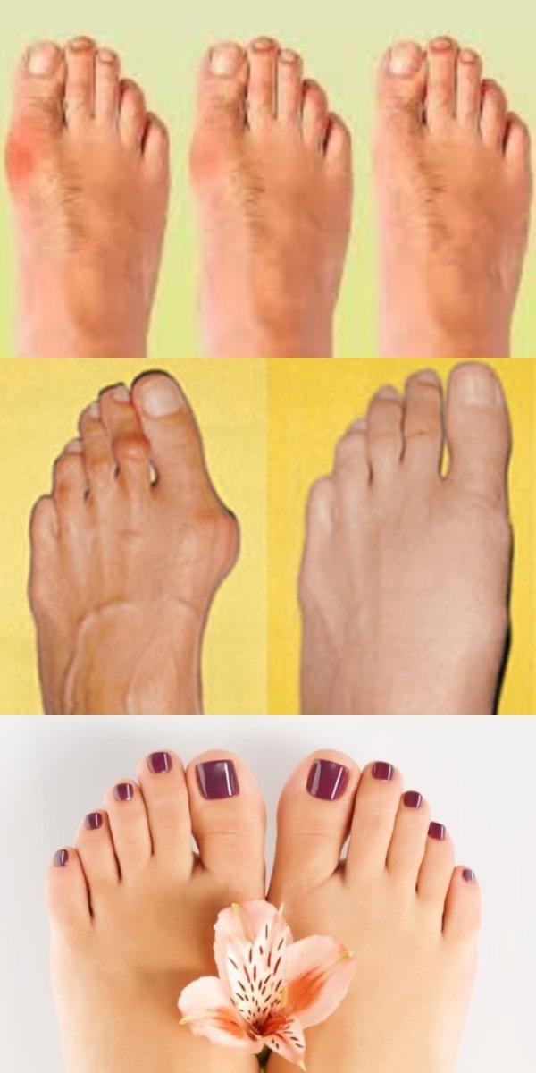 Народный рецепт от косточки на ноге