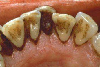 Как удалить зубной налет без визита к стоматологу!