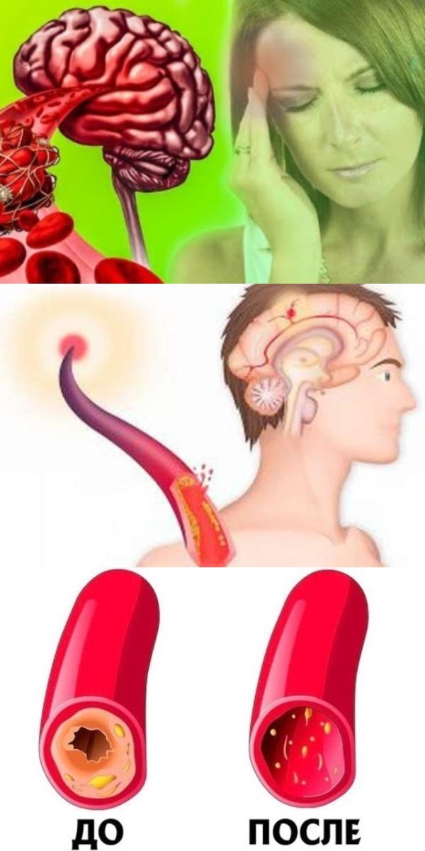 Чистим сосуды и кровь Инсульт сгинет, если употребить 15 грамм этого средства